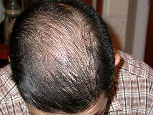 Before_hair_sep5