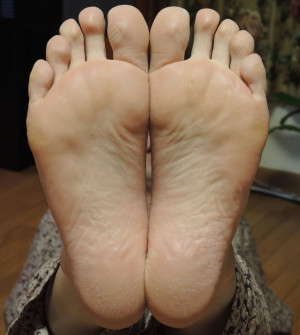 Foot_after