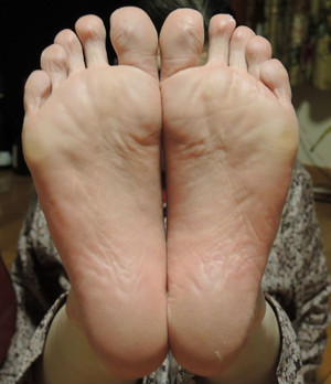 Foot_after2
